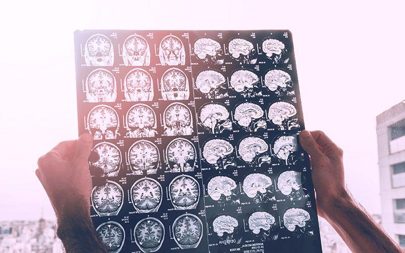 Intel Kembangkan AI untuk Deteksi Dini Tumor Otak